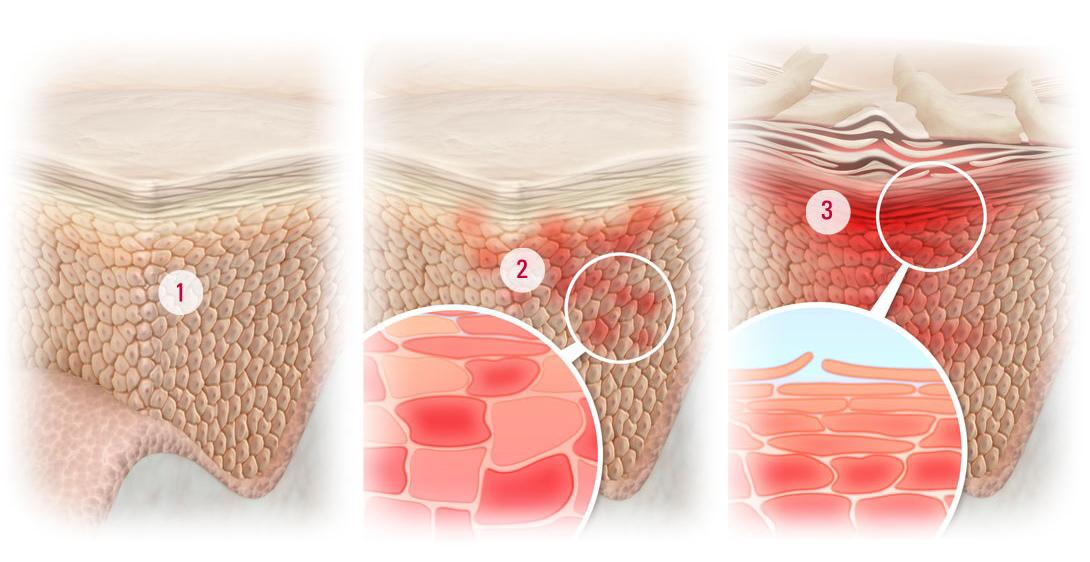 Что угодно может привести к такой дисфункции сальных желез — и стрессы, и неправильное питание, и гормональные нарушения.